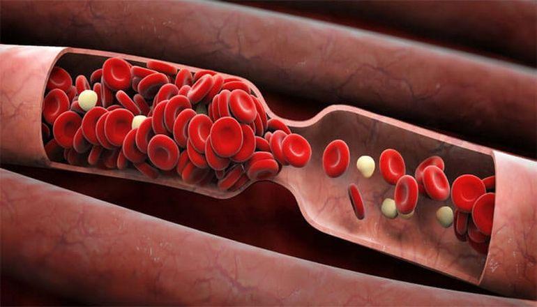 Густая кровь ― главные опасности